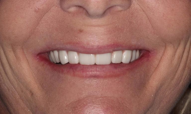 dentist in lafayette la