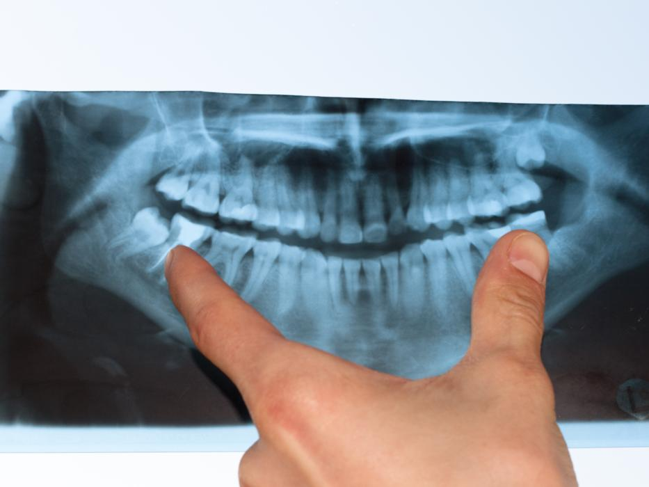 An image of a dental x-rays | Dental X-rays Lafayette