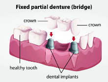 Dental Implants Lafayette LA