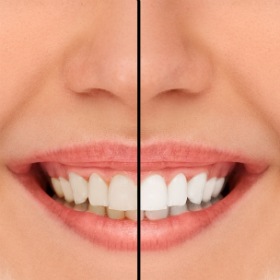 Professional Teeth Whitening Lafayette LA