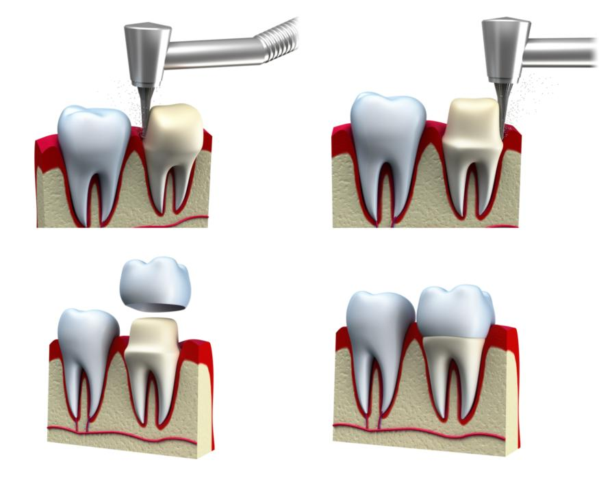 a diagram of a dental crown | Lafayette LA restorative dentistry