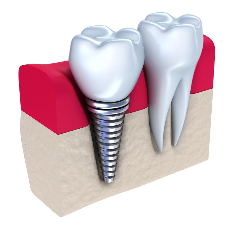 dental implant diagram | Lafayette LA