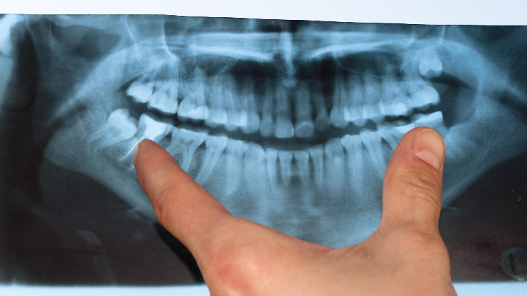X-Ray | Top Diagnostic Dentist in Lafayette