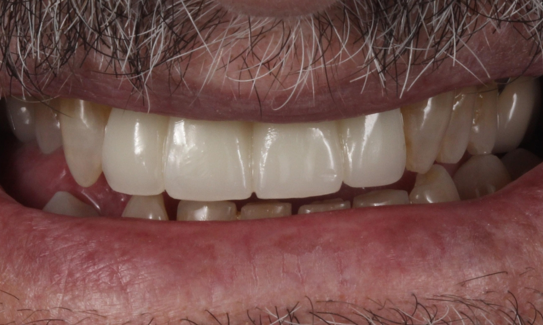 Tooth Repair in Lafayette | Before & After