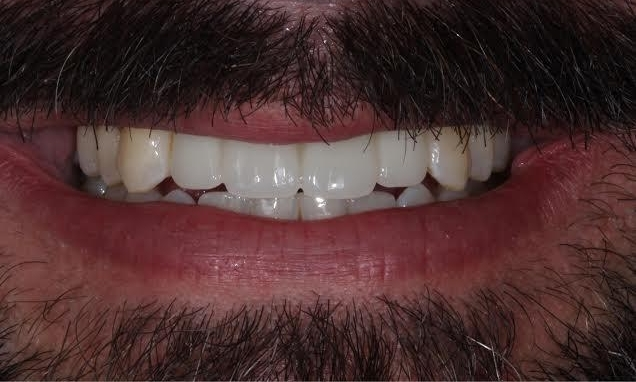 Tooth Repair and Fix in Lafayette | Before & After