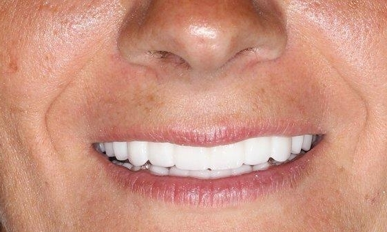 Tooth Replacement in Lafayette | Before & After