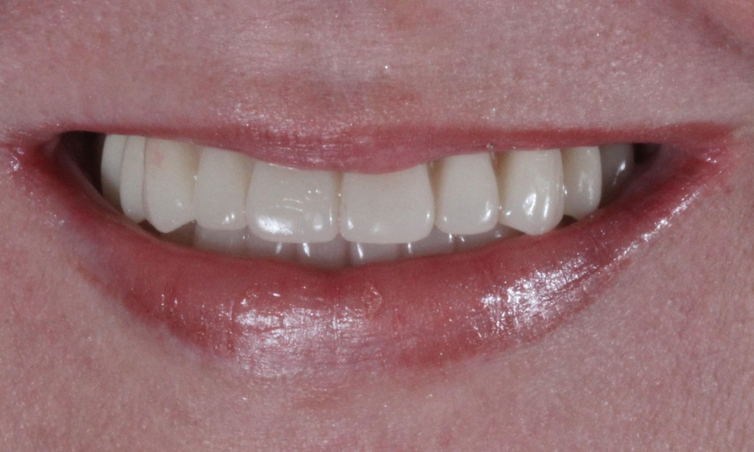 Loose Denture to Permanent teeth