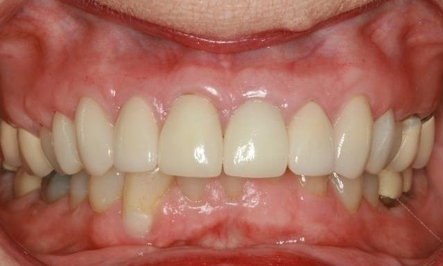 Teeth Restorations in Lafayette | Before & After