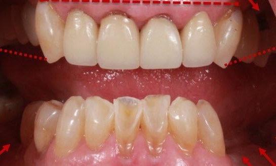 Dental Crowns in Lafayette | Before & After