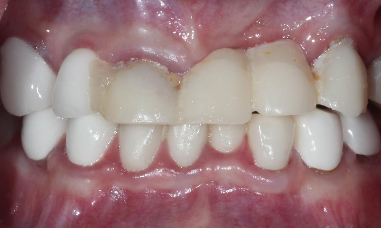 Need-Help-with-Front-Teeth-Before-Image