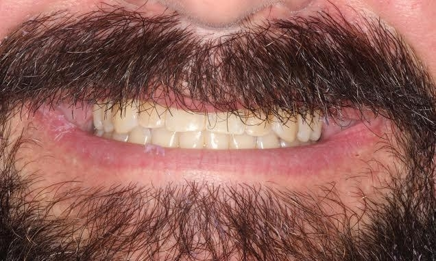 Replaced-broken-tooth-with-implant-and-crowned-front-teeth-Before-Image
