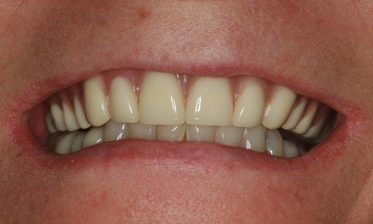 Fixed-Permanent-Implant-Bridge-Before-Image