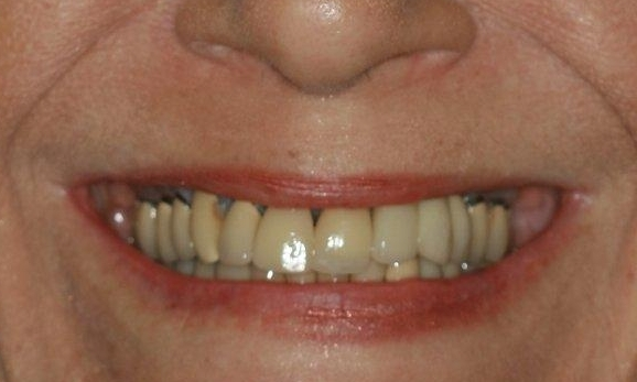 Implants-and-Crowns-Before-Image